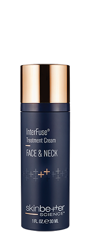 InterFuse® Treatment Cream 30ml